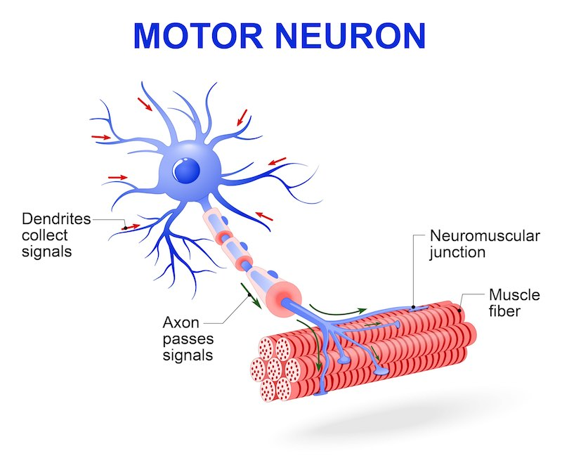 How Close Are We To Curing ALS A Review Of Biotech U0026 39 S Efforts