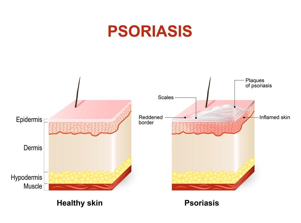 psoriasis-review-blockbusters-skin2