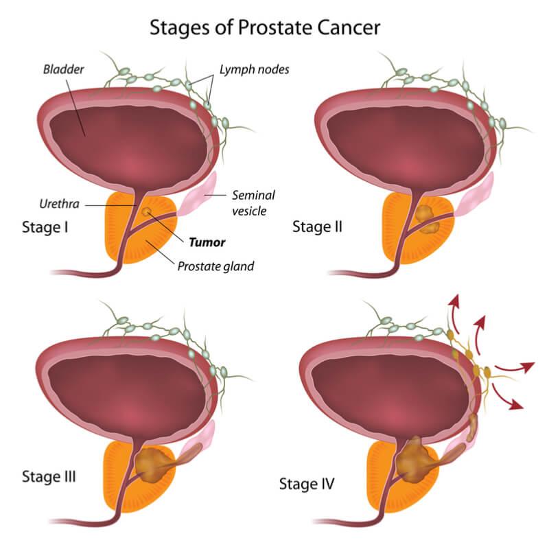 Mit kell inni a gyümölcsleveket a prosztatitisekkel Berdyansk a prosztatitis kezelése