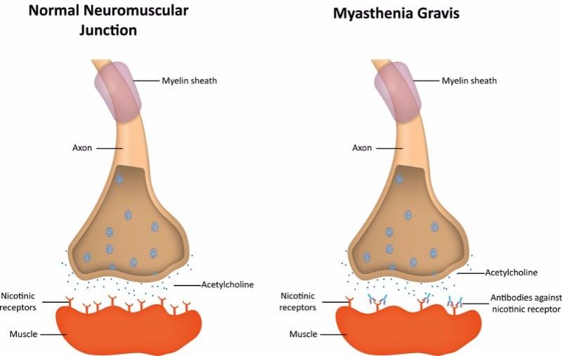 myasthenia gravis treatment argenx