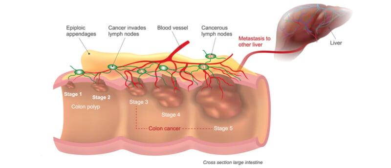 Haliodx Closes A 18 5m Series B To Boost Colon Cancer Diagnostics