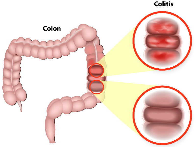 German DNA Treatment Reduces Ulcerative Colitis Symptoms