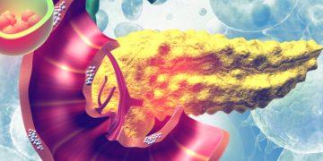 follicum type 2 diabetes hair loss beta cell