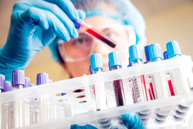 A New Liquid Biopsy Can Improve Ovarian Cancer Diagnosis