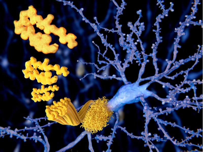 Can Morphosys Decrease Amyloid Beta in the Brains of Alzheimer's Patients?