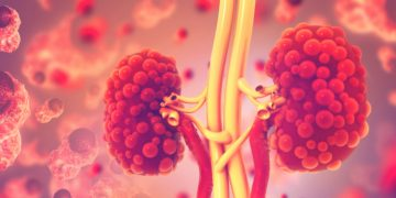 Belgian Biotech Raises €36M to Develop Tests for Urological Cancer