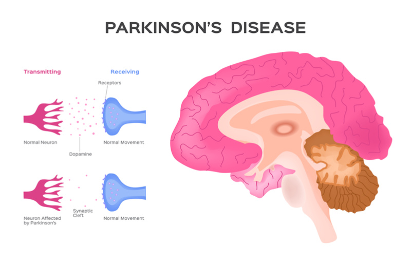 Leading AI Company Supports UK Charities in Fighting Parkinson's Disease