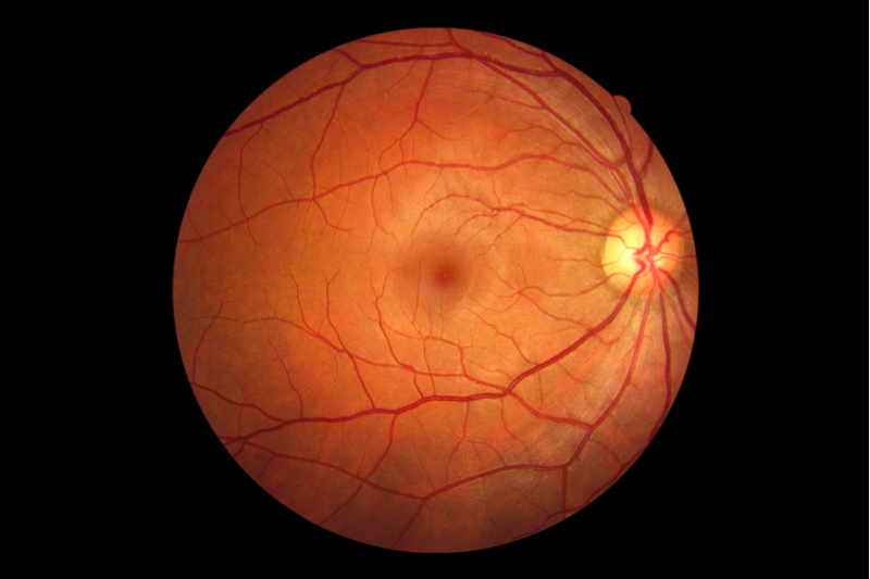 Oxford Spin-out moves Gene-therapy for Blindness into Phase III Trial