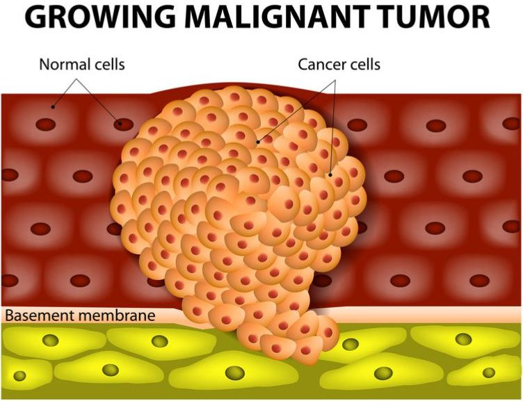 BerGenBio's Cancer Combination Therapy Attracts €19M