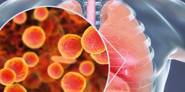 First Rapid Molecular Diagnostics Test for Lung Infections Approved in the US