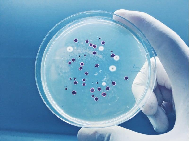 Deinove Skin Care Bacterial Culture