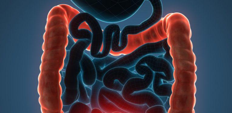 https://mk0labiotecheugl43g7.kinstacdn.com/wp-content/uploads/2018/04/PredictImmune-Biomarker-Test-Crohns-Disease-764x375.jpg