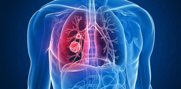 io biotech startup novo seeds immunotherapy ventures lung cancer