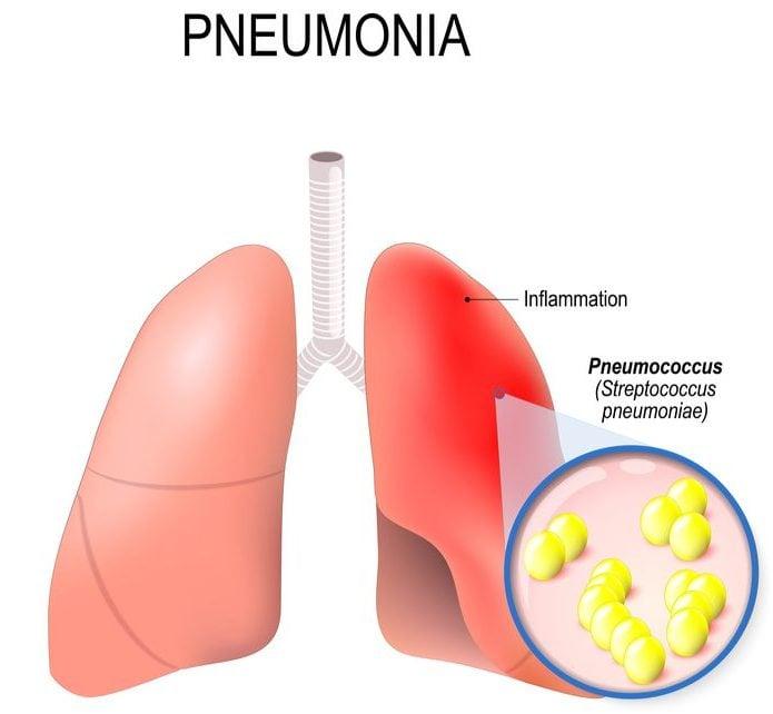 Irish Pneumonia Antibiotic Gets Positive Phase III Results