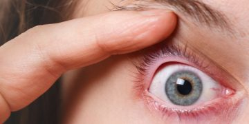 Moving One Step Closer to Treating Eye Allergies With RNA Interference