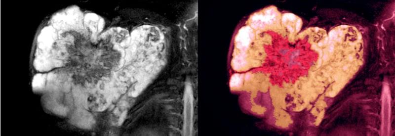 Malignant soft tissue sarcoma - nanomedicine target