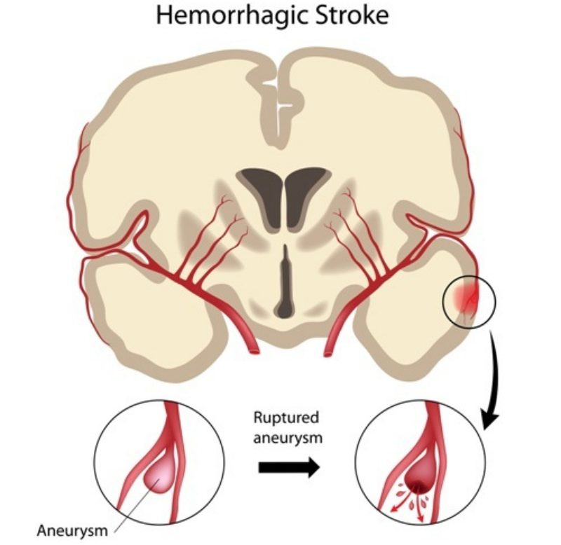 Swiss Biotech Tackles Brain Artery Constriction Caused by Hemorrhage