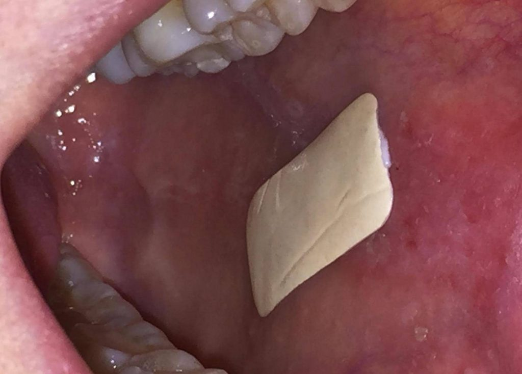 A Biodegradable Plaster Could Help us Treat Mouth Ulcer Patients