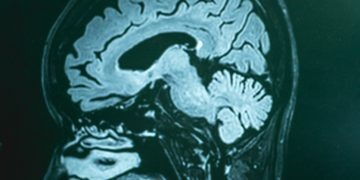 Swedish Alzheimer's Treatment Slows the Disease in Phase II Trial