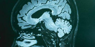 Swedish Alzheimer's Treatment Slows the Disease in Phase II Trial