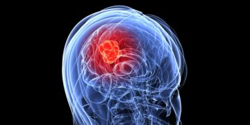 Austrian Researchers Grow Mini Brain Cancer Tissue in a Dish