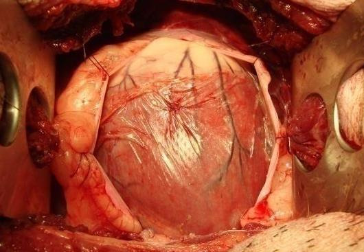 Stem Cells Could Help Patients Recover From Heart Attack