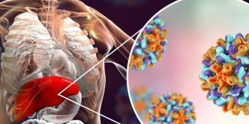 New Blood Test Brings Cheaper Hepatitis B Diagnosis