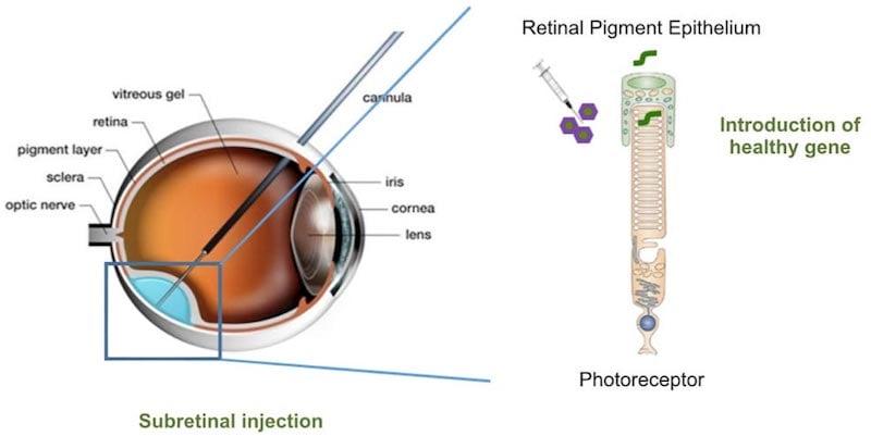 Horama retinitis pigmentosa gene therapy