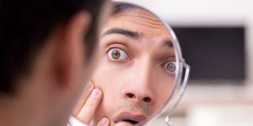 Cassiopoeia acne panic