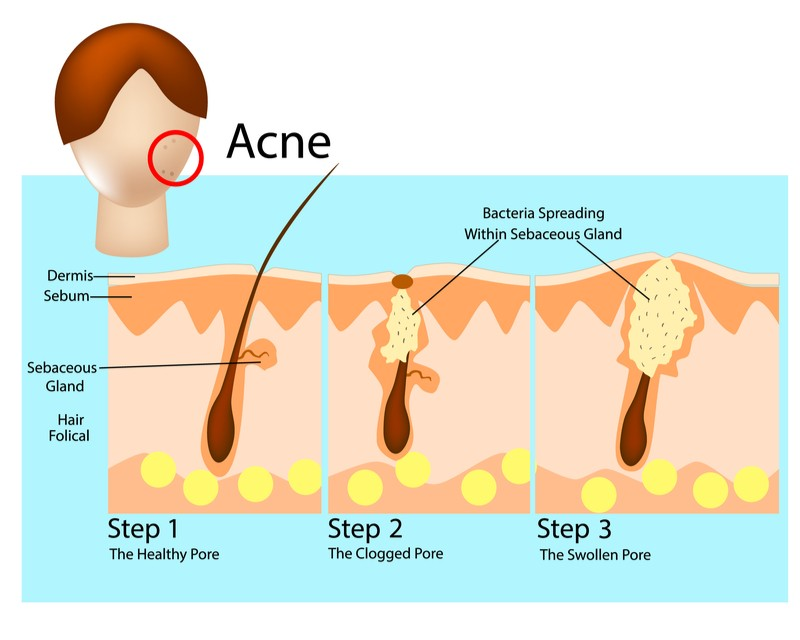 Hangout - acne skin microbiome process