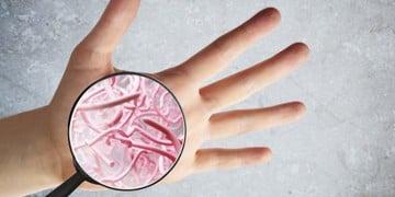 Hangout - acne skin microbiome