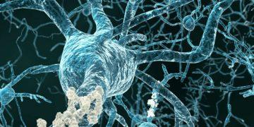 Alzheimer's disease grifols neuron plaque
