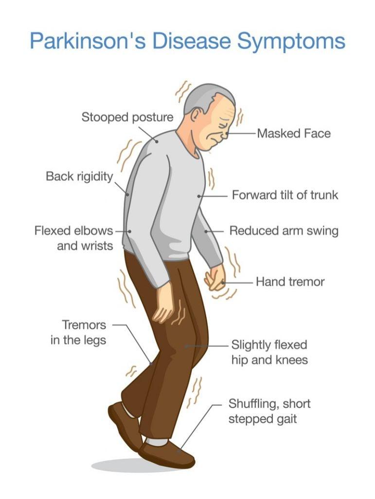 axovant Parkinson's disease motor symptoms