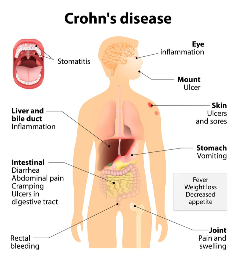 enterome microbiome crohns disease