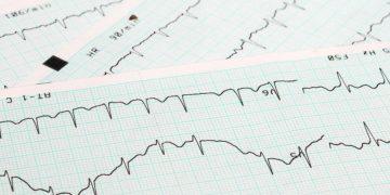 omeicos heart irregular heartbeat
