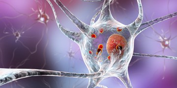united neuroscience parkinson's disease