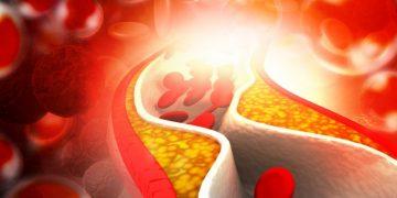 novo nordisk staten fat hypertriglyceridemia cardiovascular disease