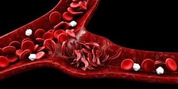 uniQure Freeline aruvant blood disorders