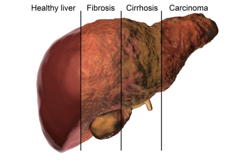liver cirrhosis treatment versantis