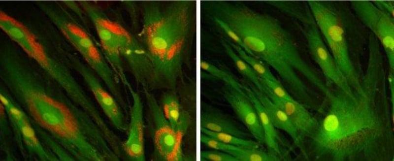 orphazyme niemann-pick type c disease rare metabolic disease drug