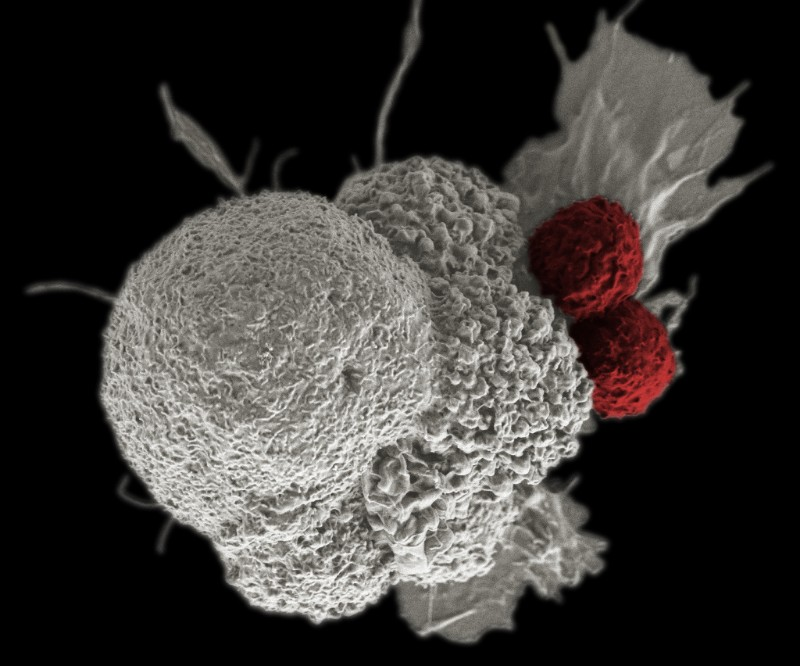 car-t cancer immunotherapy