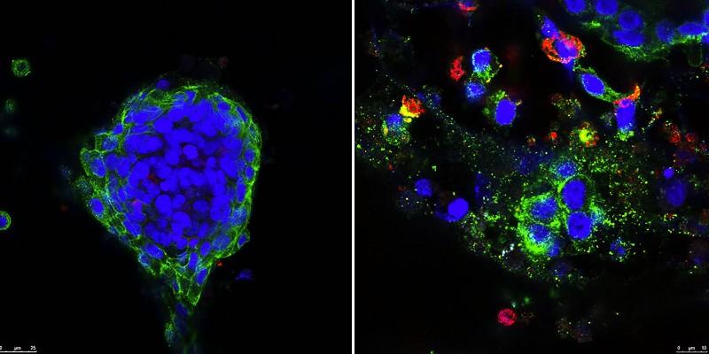breast cancer metformin klefstrom university of helsinki checkpoint inhibitor