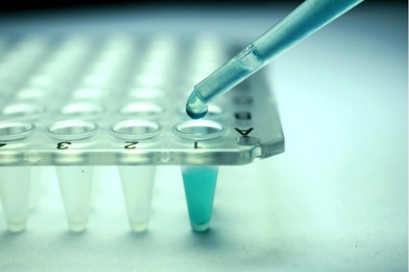 gene therapy ada-scid orchard therapeutics lab