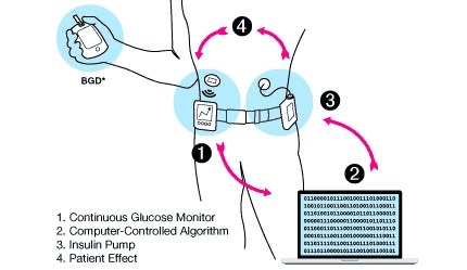 Artificial pancreas diabetes