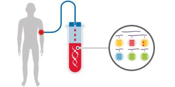 Inivata cancer liquid biopsy