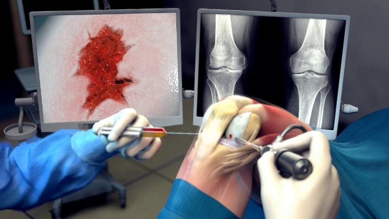 arthritis hydrogel tissue engineering osteoarthritis