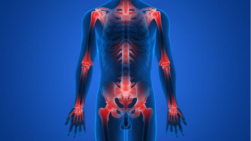 juvenile arthritis pediatric idiopathic Leuven rare disease