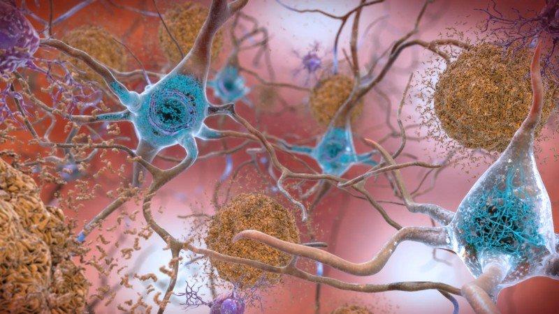 bioarctic Alzheimer's disease plaques amyloid beta