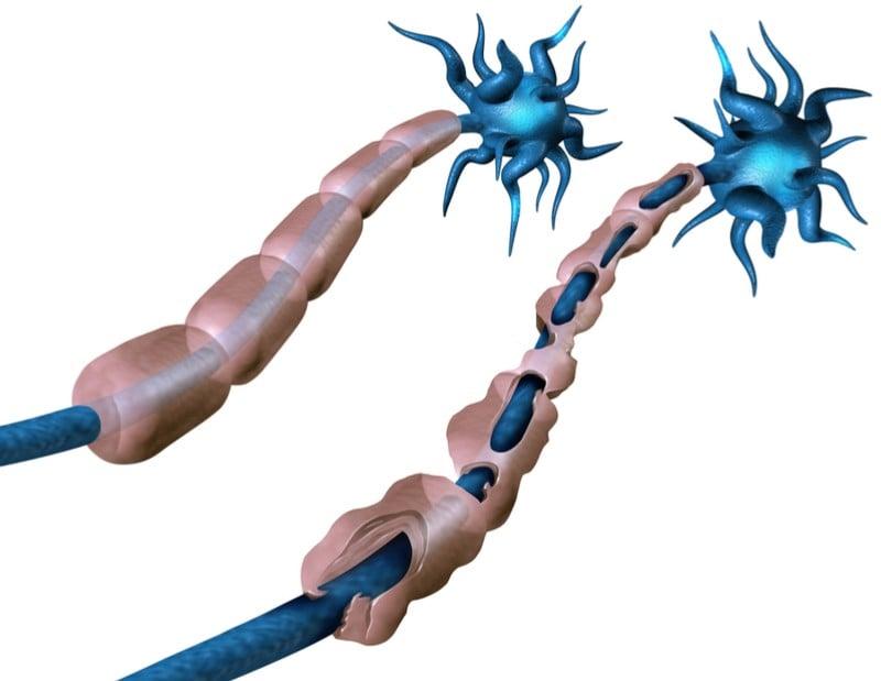geneuro multiple sclerosis treatment neuron