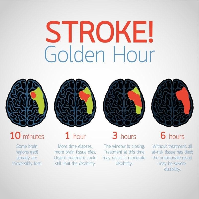 neurimmune novago stroke